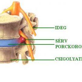 gerincsérv előjelei és kialakulása